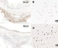 Chromogenic Detection for Western Blot, IHC, and ELISA